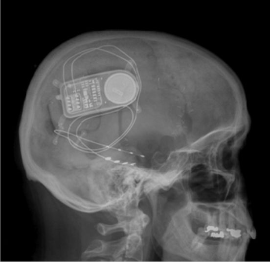 X-ray of RNS